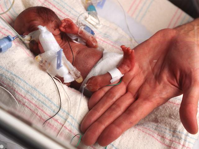 premature-baby_51885220_1598537149.jpg