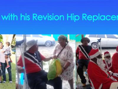 Richard Parkinson Revision Hip Replacement