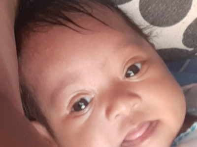 Help Baby Amaiya with her heart surgery